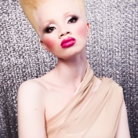 Why Gert-Johan Chose A Girl With Albinism As The Face Of His New Collection!